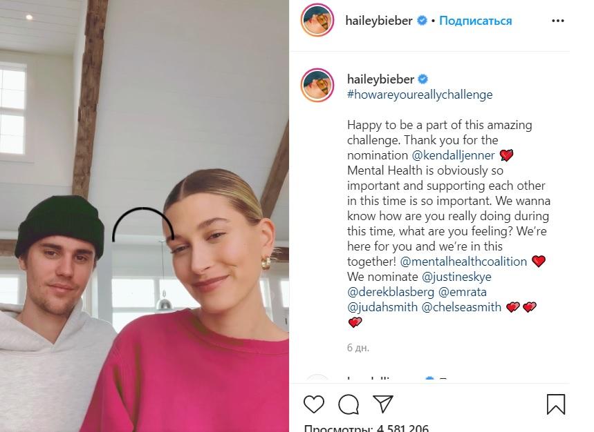 Хейли Бибер заверила, что не делала пластические операции