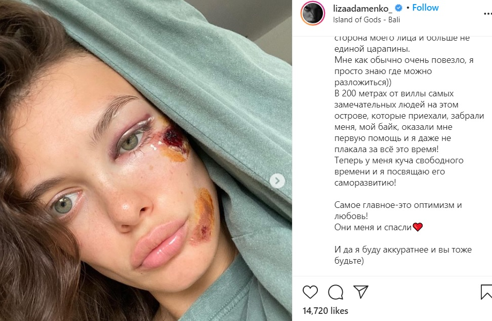 Участница «Холостяка» угодила в ДТП и разбила в лицо