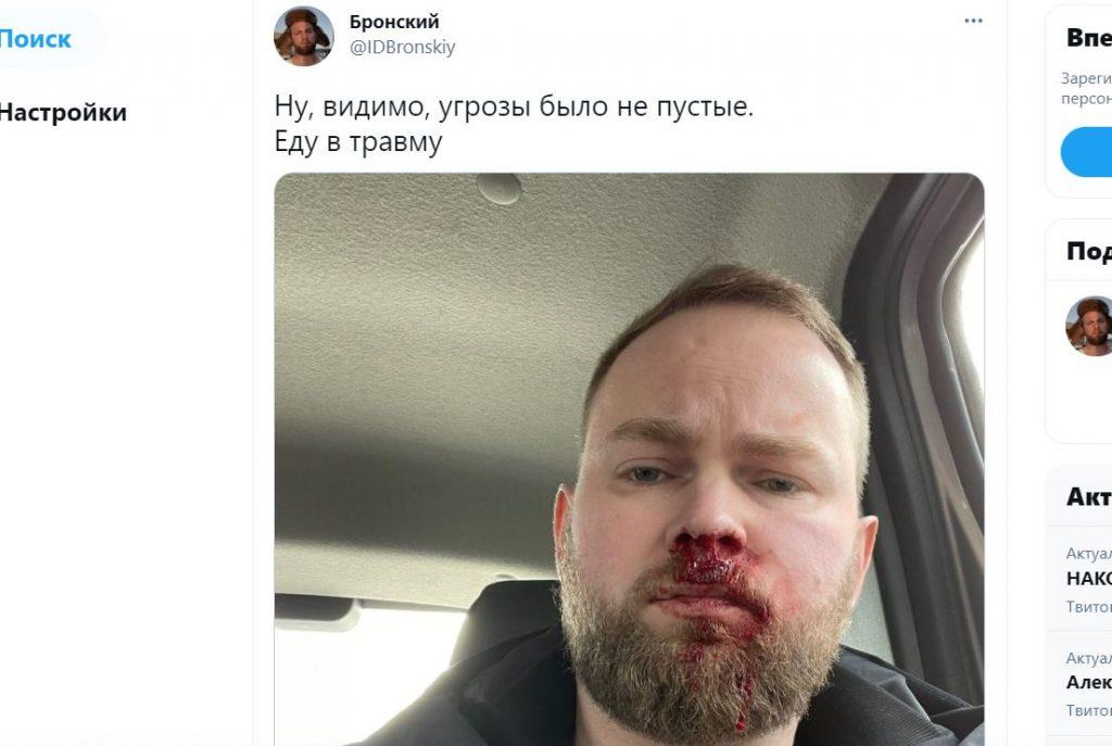 Петербургского блогера избили после интервью про жизнь с ВИЧ